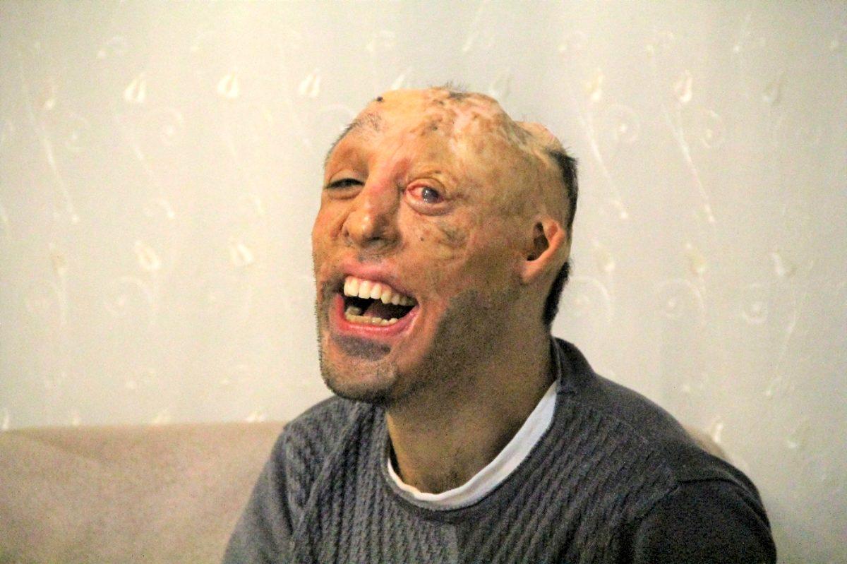 Photo of Yüzü tamamen yanmış adama tam destek0 (0)