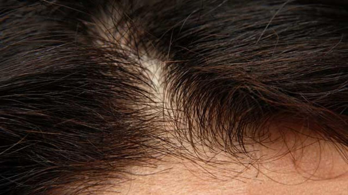 Photo of Kadınların Saçı Daha Fazla Dökülüyor0 (0)