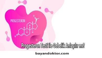 Photo of Progesteron Testi ile Gebelik Anlaşılır mı?0 (0)